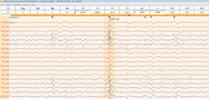 image-content-top_besa-epilepsy-features-spike-detection