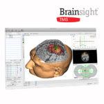 Brainsight TMS