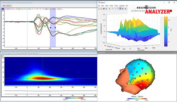 BrainVision analyzer 2 Software
